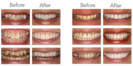 Teeth Whitening Teeth Whitening Dentist In Office Teeth Whitening
